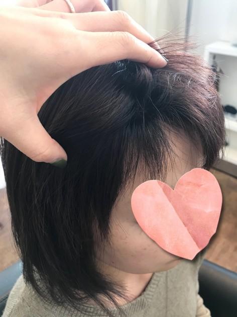 自毛と近い髪型のピンクブラウン医療用ボブウィッグ生え際